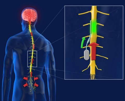 Τέλος στους πόνους της σπονδυλικής στήλης