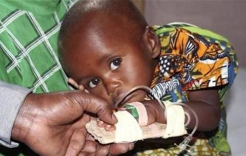 Εγκεφαλίτιδα σκοτώνει τα παιδιά στην Ινδία