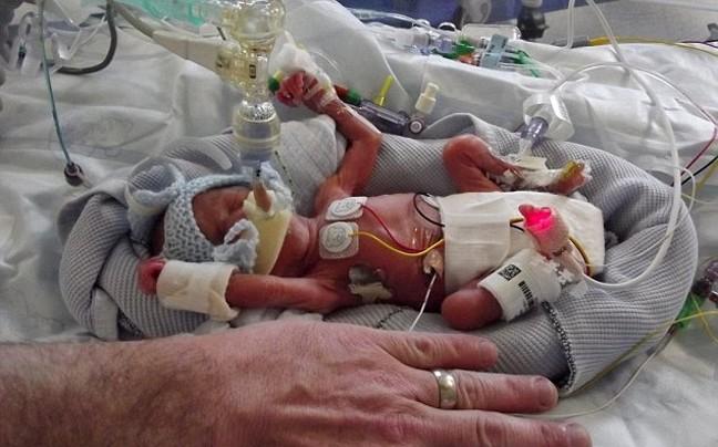 Σοκαριστικές φωτογραφίες: Βρέφος γεννήθηκε 450 γραμμάρια