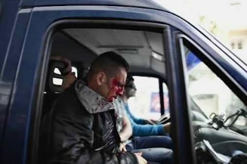 Φωτογραφία του ειδικού φρουρού που ξυλοκοπήθηκε