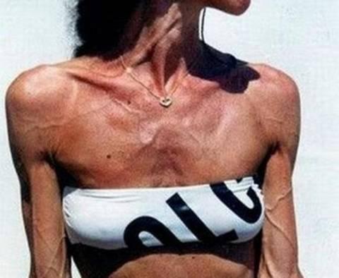 Σοκαριστικές εικόνες από ηλικιωμένες πρώην bodybuilder