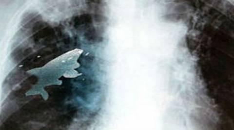 Του έβγαλαν από τον πνεύμονα ένα ζωντανό ψάρι