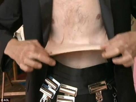 Απίστευτο: Ο άνθρωπος με το ελαστικότερο δέρμα στον κόσμο