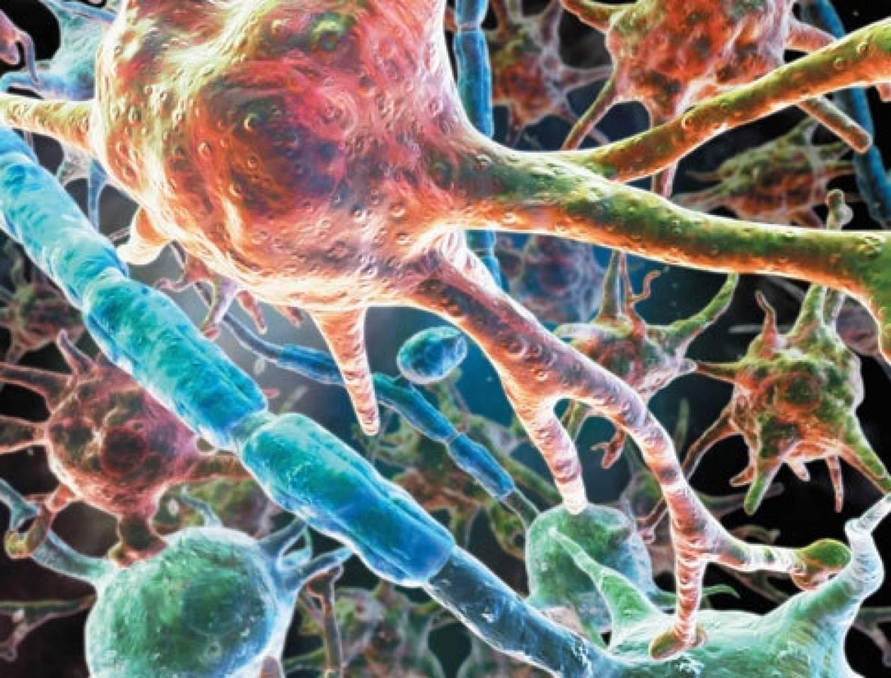 Ανακάλυψαν το μόριο που σταματά τη μετάσταση των καρκινικών κυττάρων!