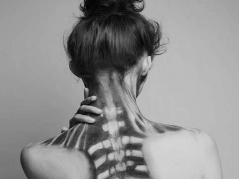Το κορίτσι – σκελετός