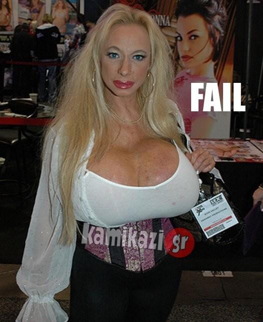 ΔΕΙΤΕ: Το πιο τραγικό πλαστικό στήθος που έχουμε δει!