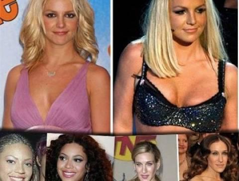 Ποιες διάσημες stars έχουν κάνει πλαστική στήθους;