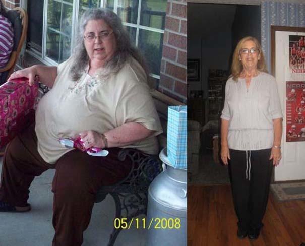 Το πριν και το μετά: Άνθρωποι που αποφάσισαν να αδυνατίσουν