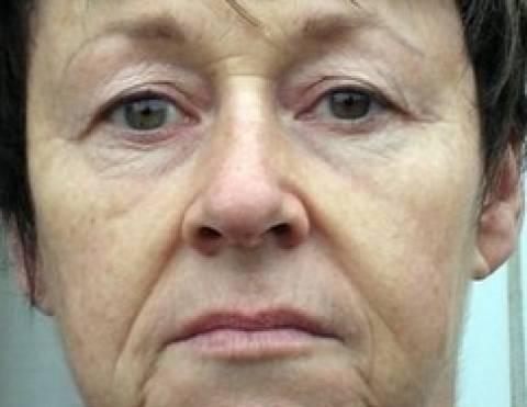 Ξόδεψε 6.000 ευρώ σε πλαστικές επειδή έμοιαζε σαν μάνα του φίλου της