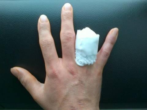 Τι αποζημίωση πήρε επειδή χτύπησε το δάχτυλο του εν ώρα εργασίας;