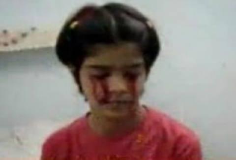 Βίντεο-ΣΟΚ! Κοριτσάκι αντί για δάκρυα βγάζει αίμα