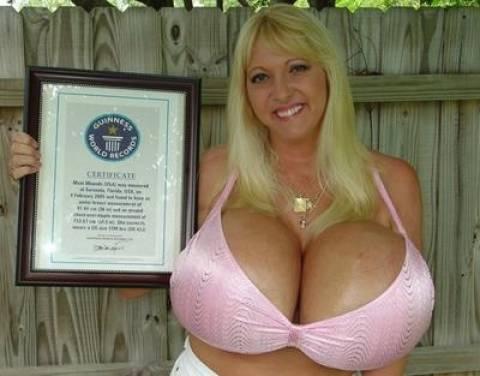 Η γυναίκα με το μεγαλύτερο πλαστικό στήθος στον κόσμο