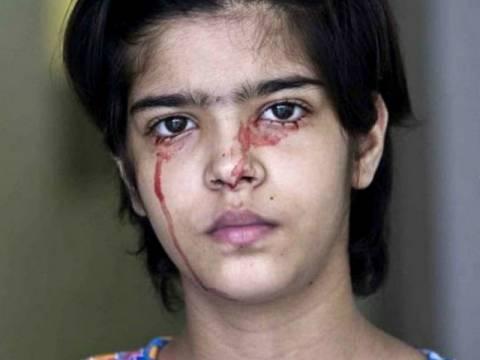 ΣΟΚΑΡΙΣΤΙΚΟ: Τρεις άνθρωποι που βγάζουν δάκρυα από αίμα