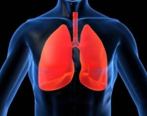 Στην Ιταλία ασθενής για μεταμόσχευση πνευμόνων