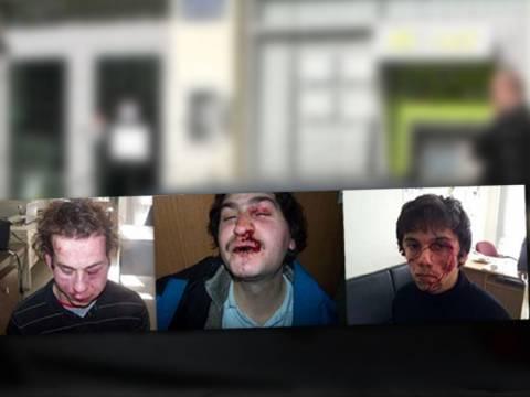 ΕΛ.ΑΣ.: Από αντίσταση και συμπλοκή τα τραύματα των 4 συλληφθέντων