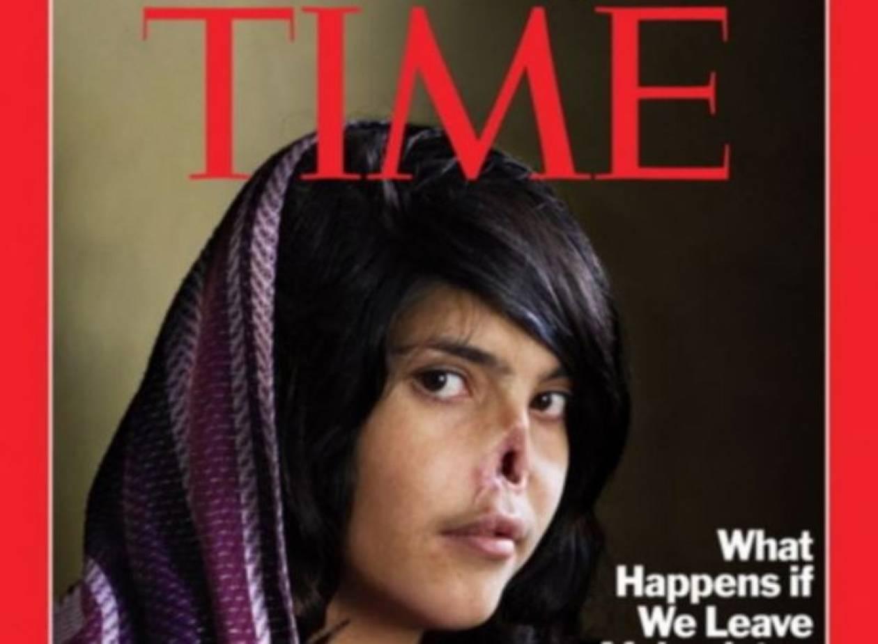 Δείτε την Αφγανή στο εξώφυλλο του Time μετά τις επεμβάσεις