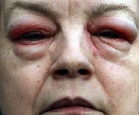 Απίστευτο: Έβαλε σταγόνες και λόγω αλλεργίας έγινε σαν... εξωγήινη!