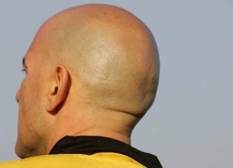 Βίντεο: Ποιος ευθύνεται για την φαλάκρα;
