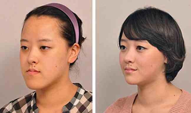 ΔΕΙΤΕ: Κορεάτες πριν και μετά την πλαστική