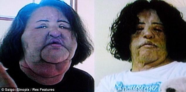ΦΡΙΚΗ: Έκανε ενέσεις με λάδι στο πρόσωπό της-Δείτε πως παραμορφώθηκε