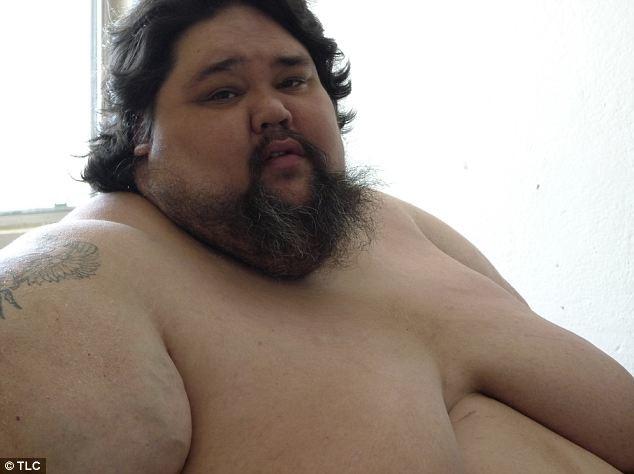 Ένας από τους πιο παχύσαρκους ανθρώπους στον κόσμο-Ζυγίζει 408 κιλά