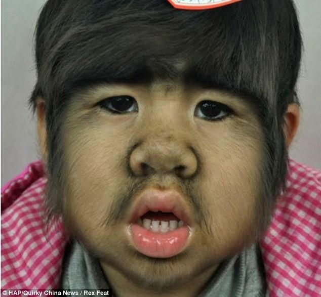 Το 4χρονο κοριτσάκι που πάσχει από το σύνδρομο του λυκανθρώπου (pics)