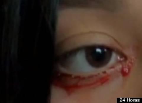 Βίντεο-ΣΟΚ: 20χρονη κοπέλα όταν κλαίει αντί για δάκρυα βγάζει αίμα
