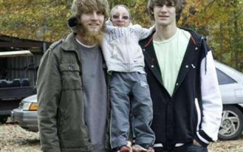 Αν και είναι 21 ετών έχει το σώμα ενός 2χρονου παιδιού (pics)