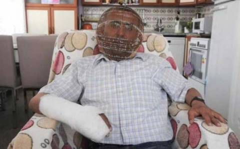 Tούρκος καπνιστής κλείδωσε το κεφάλι του σε κλουβί επειδή...