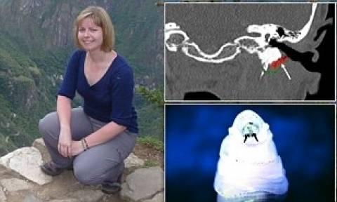ΣΟΚ: Ανακάλυψε ζωντανά σκουλήκια μέσα στο κεφάλι της!