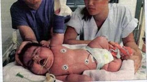Δείτε το πιο βαρύ νεογέννητο στον κόσμο