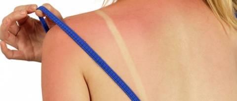 Λύσεις για το κάψιμο από τον ήλιο