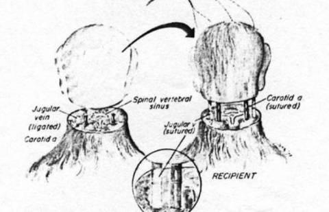 Μεταμόσχευση κεφαλιού;  Και όμως είναι εφικτό!
