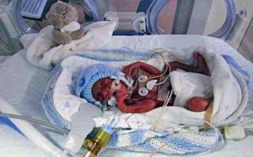 Η συγκλονιστική ιστορία του μικρού Lucas! (pics)