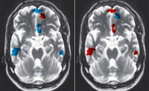 Η δυσλεξία είναι εμφανής σε απεικονιστικές εξετάσεις εγκεφάλου