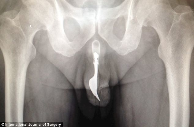 Έπαθαν ΣΟΚ οι γιατροί όταν στα γεννητικά του όργανα βρήκαν ένα...