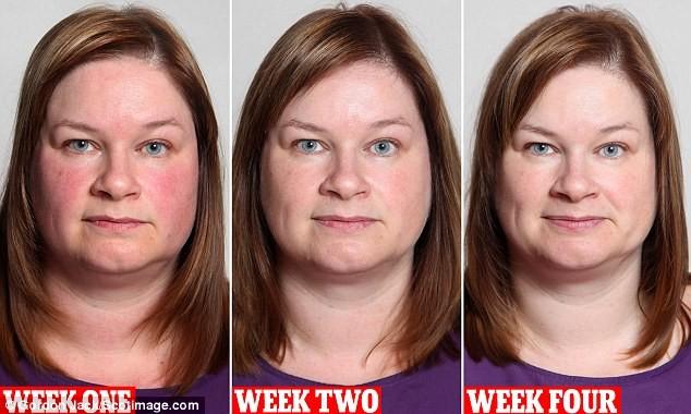 Απίστευτο: Δείτε πώς έγινε σε 1 μήνα μια γυναίκα που σταμάτησε το ποτό