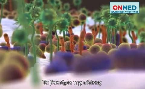 Βίντεο: Πώς σχηματίζεται η πλάκα