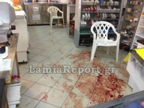 Αιματηρή ληστεία στη Λαμία