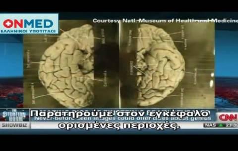 CNN: Εικόνες από τον εγκέφαλο του Αϊνστάιν