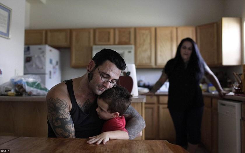 Ρατσιστής αφαιρεί όλα τα ναζιστικά τατουάζ (vid)