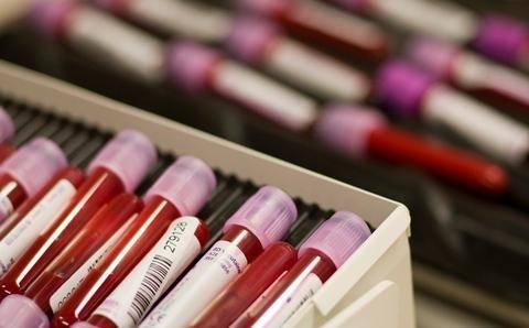 ΣΟΚ στην Πάφο: Πέθανε από μετάγγιση αίματος