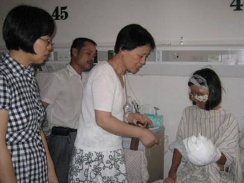 Απίστευτο: Γιατροί εμφύτευσαν το νέο πρόσωπό της στο στήθος της