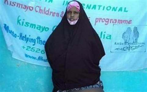 ΣΚΛΗΡΕΣ ΕΙΚΟΝΕΣ: Πάσχει από ελεφαντίαση - Το πόδι της ζυγίζει 31 κιλά