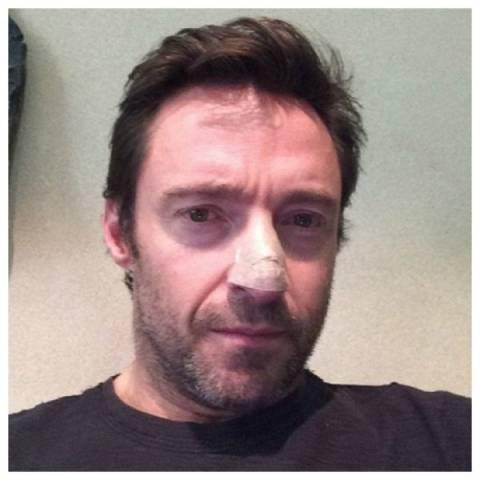 O Hugh Jackman υποβλήθηκε σε θεραπεία για τον καρκίνο του δέρματος