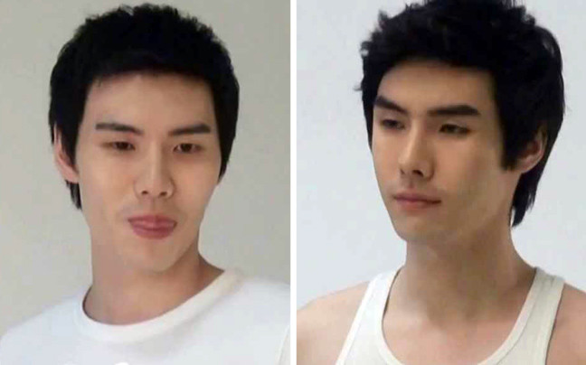 Κορεάτες πριν και μετά την πλαστική (pics)