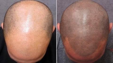 Τατουάζ που κάνει θραύση: Μαλλιά σε ...φαλακρό!