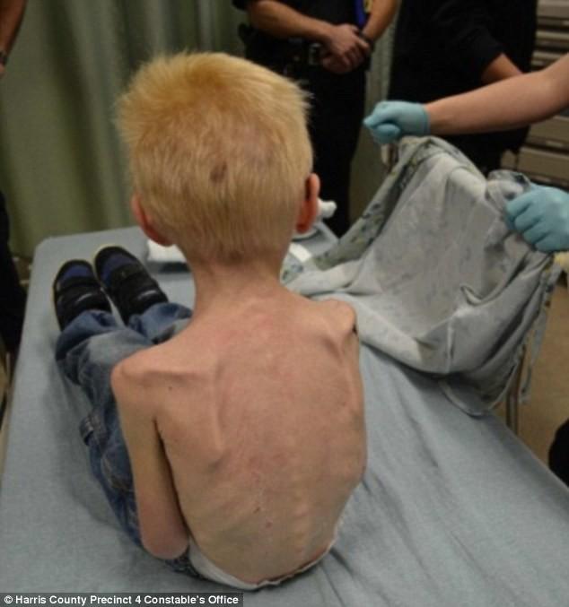 ΦΡΙΚΗ: Δεν τάιζαν το παιδί τους-Τα κόκαλα είχαν τρυπήσει την πλάτη του