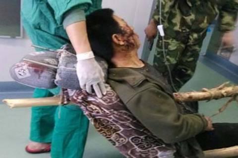 Σκληρές εικόνες: Τον διαπέρασε κορμός δέντρου και σώθηκε! (photos)