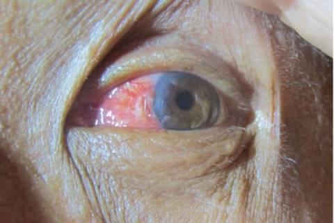 Σέρφερ χειρούργησε το μάτι του «δαμάζοντας» ένα… κύμα! (photos)
